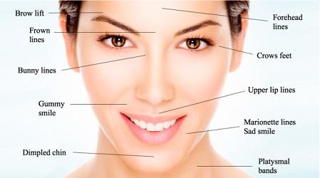 Botox Treatments Wellington | Dysport Treatment Center